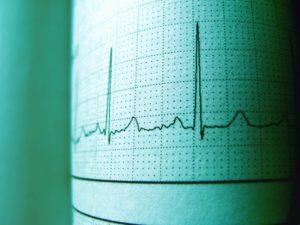 KTU mokslininkai sukūrė neinvazinį elektrolitų disbalanso kraujyje stebėsenos būdą, kuris gali apsaugoti nuo pavojingų aritmijų